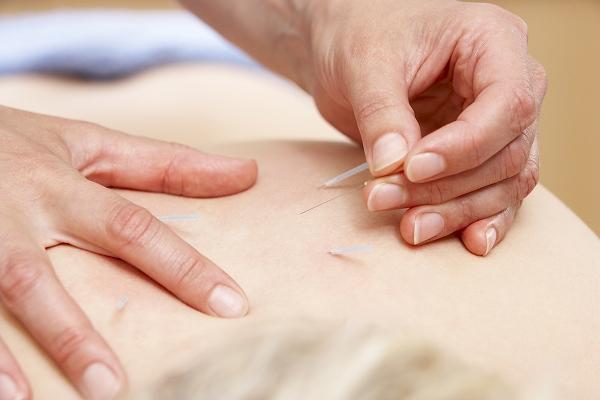 女性疾患の鍼灸治療